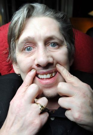 shane macgowan new teeth